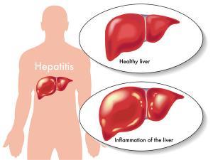 Cara Mengobati Hepatitis A